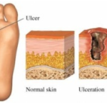 Diabetes Foot Infections