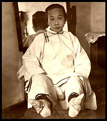 Dangers of lacking proper shoe fit - Chinese Footbinding